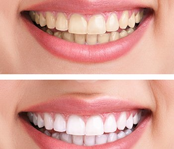 Dr. Clint Bruyere, Clint Bruyere, DDS The dental veneer procedure in Longview quickly and dramatically improves your smile