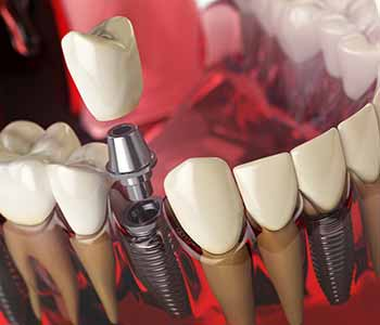 Dr. Clint Bruyere, Clint Bruyere, DDS Providing Highly respected dentist in Longview, TX highlights the benefits of dental implants