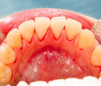 Dr. Clint Bruyere, Clint Bruyere, DDS Your gum disease specialist in the Longview area offers solutions to chronic infection