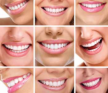 Dr. Clint Bruyere, Clint Bruyere, DDS providing Enjoy your best smile with personalized dental care in Longview
