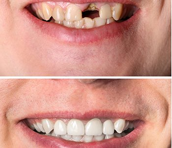 """Dr. Clint Bruyere, Clint Bruyere, DDS explaining """"What is a primary benefit of disguising a tooth imperfection with a veneer?"""""""