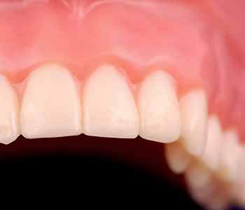 What Is Quality Denture In Longview TX area
