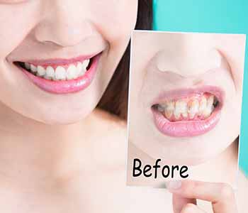 Transform your smile with a conservative porcelain veneer procedure. Call Dr. Cint Bruyere of Longview,