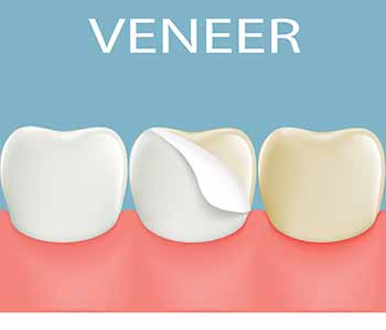 The first step is a consultation with Dr. Bruyere. He will perform an examination to ensure that you are a suitable candidate. Veneers are an excellent solution for most people with good oral health.