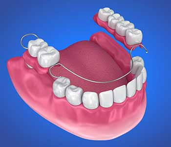Partial dentures use a metal and acrylic framework to snap into place with the existing teeth.
