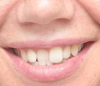 Cosmetic Dental Solutions for Crooked Teeth in Longview area