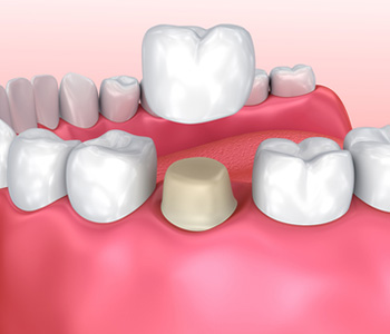 Dental Crowns in Longview area