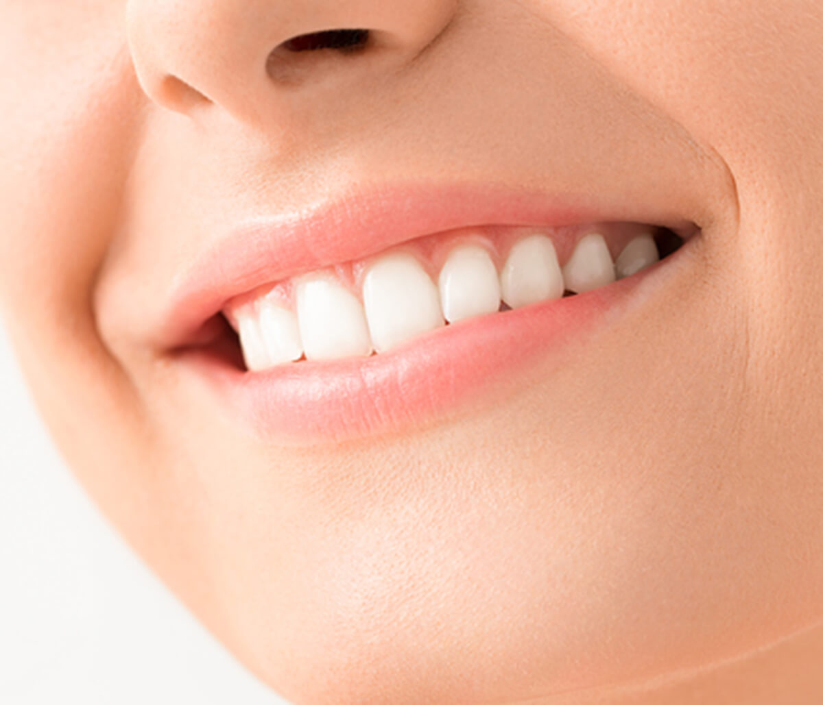 All About the Porcelain Veneers Process in Longview TX Area