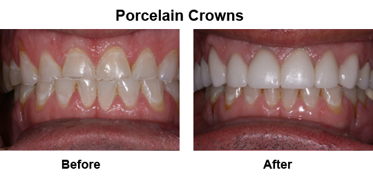 Dental Crown Longview - Before and After Crowns 1