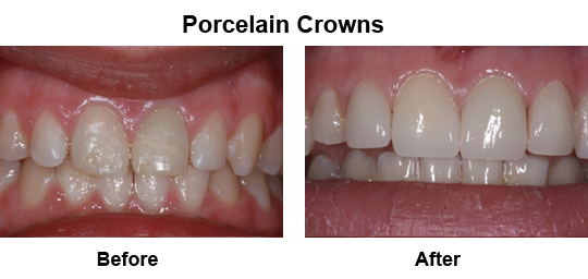 Dental Crown Longview - Before and After Crowns 2