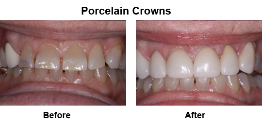 Dental Crown Longview - Before and After Crowns 3