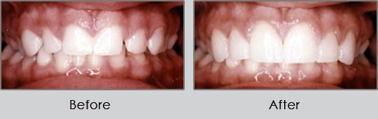 Longview Dentists - Before and After Case 1