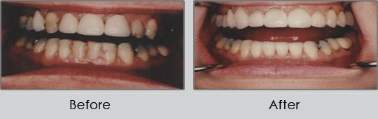 Longview Dentists - Before and After Case 10