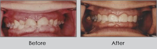 Longview Dentists - Before and After Case 11