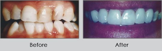 Longview Dentists - Before and After Case 12