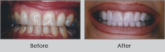 Longview Dentists - Before and After Case 13