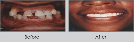 Longview Dentists - Before and After Case 15