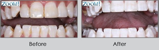 Longview Dentists - Before and After Case 17