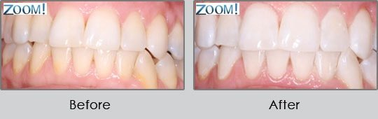 Longview Dentists - Before and After Case 18
