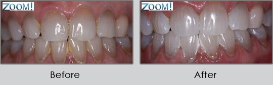 Longview Dentists - Before and After Case 19