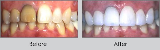Longview Dentists - Before and After Case 2