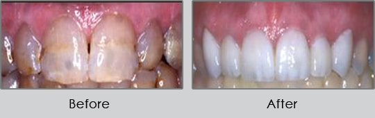 Longview Dentists - Before and After Case 3