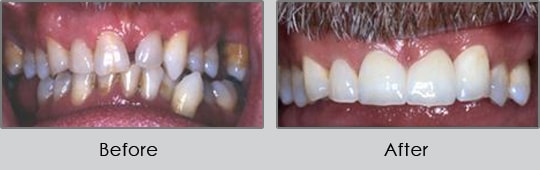 Longview Dentists - Before and After Case 4