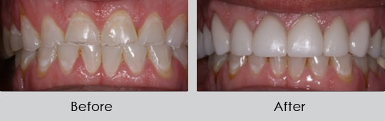 Longview Dentists - Before and After Case 5