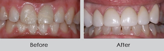 Longview Dentists - Before and After Case 6
