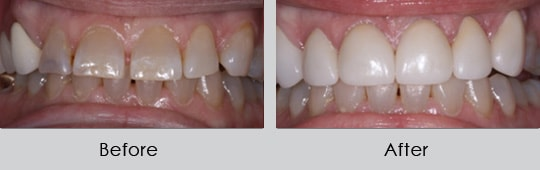 Longview Dentists - Before and After Case 7