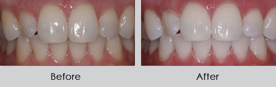 Longview Dentists - Before and After Case 8
