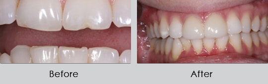 Longview Dentists - Before and After Case 9