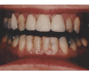 case 1 before porcelain crowns treatment