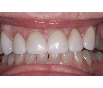 case 10 after Porcelain Crowns treatment
