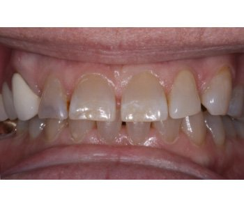 case 10 before Porcelain Crowns treatment