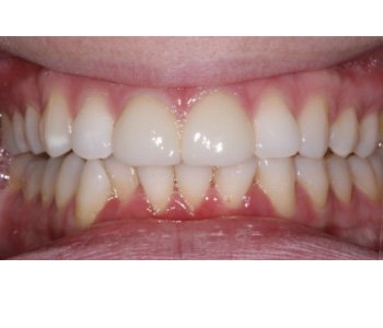case 11 after Porcelain Veneers treatment