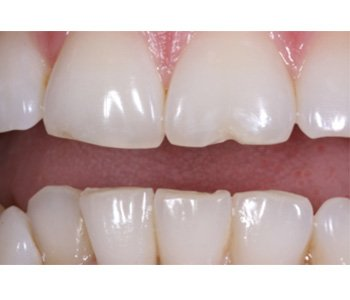 case 11 before Porcelain Veneers treatment