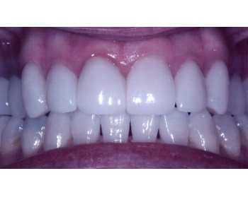 case 14 after Porcelain Crowns treatment
