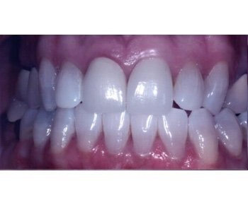 case 14 before Porcelain Crowns treatment