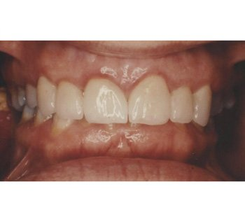 case 2 after porcelain crowns treatment