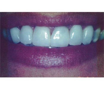 case 3 after porcelain crowns treatment
