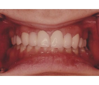 case 1 after Fixed Bridges treatment