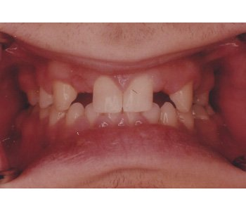 case 1 before Fixed Bridges treatment