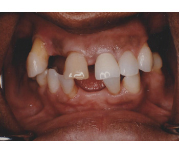 case 1 before Porcelain Crowns and Precision Partial treatment