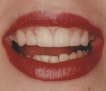 case 2 after Porcelain Veneers treatment