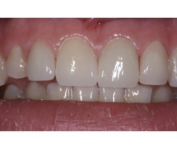 case 9 after Porcelain Crowns treatment