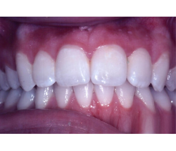 case 2 after Six Month Smiles treatment