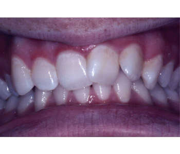 case 2 before Six Month Smiles treatment