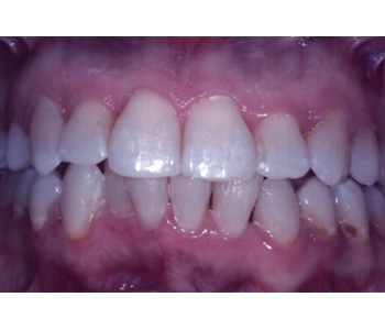 case 4 after Six Month Smiles treatment