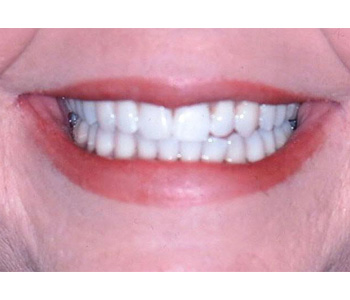 case 5 after Six Month Smiles treatment